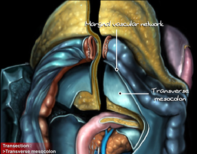 emicolectomia destra post operatorio