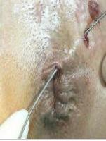 Il prurito in dorso passa il trattamento da aglio